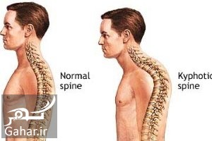 Corrective actions for drooping shoulders جلوگیری از افتادگی شانه یا گوژپشتی