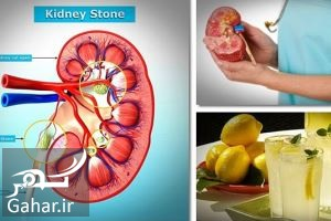 Treatment of kidney stones with traditional medicine درمان سنگ کلیه به روش طب سنتی