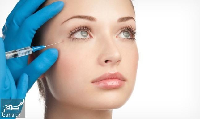 Botox آنچه که در مورد تزریق بوتاکس باید بدانید