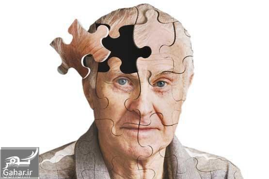 544 اولین علائم آلزایمر را بشناسید