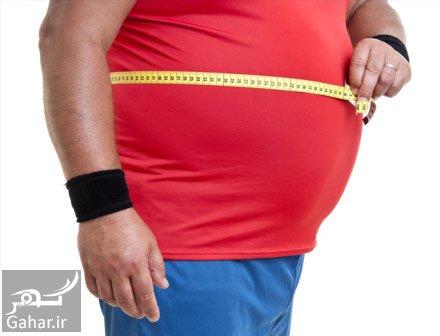 ابدومینوپلاستی عمل ابدومینوپلاستی یا جراحی زیبایی شکم چیست؟