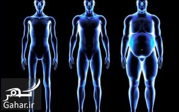 بالون معده درمان چاقی با بالون معده چگونه است؟