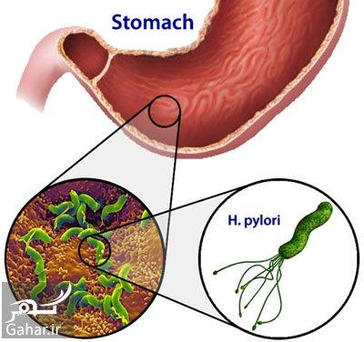 عفونت میکروبی معده روش های پیشگیری از هلیکوباکترپیلوری یا عفونت میکروبی معده