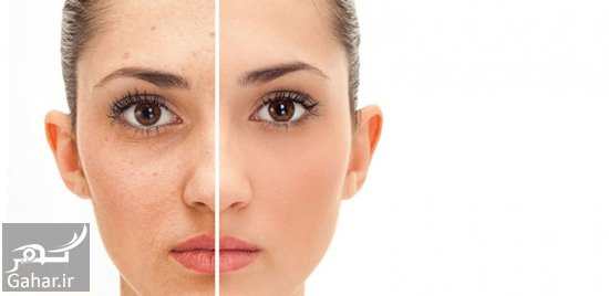 1367870 599 نکات مهمی در مورد لایه برداری پوست