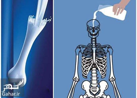 96 05 c13 1558 درمان پوکی استخوان با این روش موثر