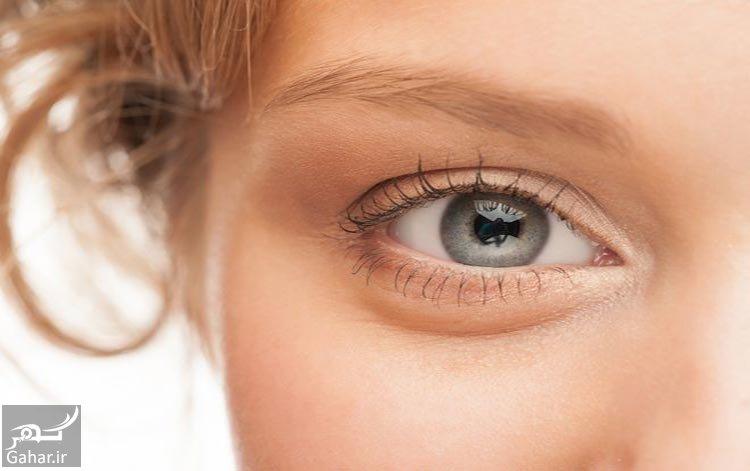 Eyess راه های موثر برای درمان پف زیر چشم