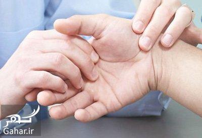 ba4368 علل و درمان ورم مفاصل در کودکان