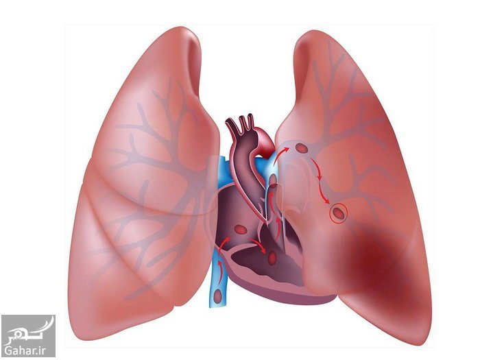 gahar21mordad96 5 نکاتی برای حفظ سلامت ریه ها
