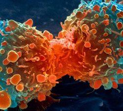 عوامل تاثیرگذار در بروز انواع سرطان ها