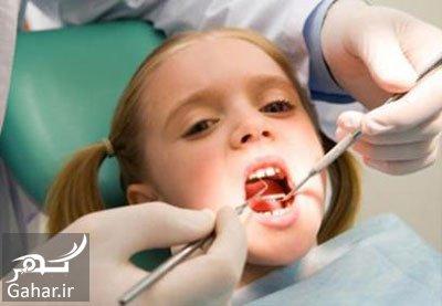 ba4425 علل و درمان پوسیدگی دندان در کودکان