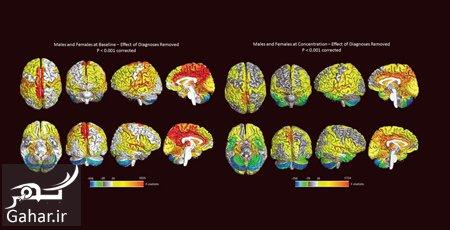 women1 active brain1 men1 مغز زنان از مغز مردان فعال تر است