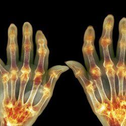 علایم آرتریت را می دانید؟