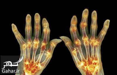 arthritis1 علایم آرتریت را می دانید؟