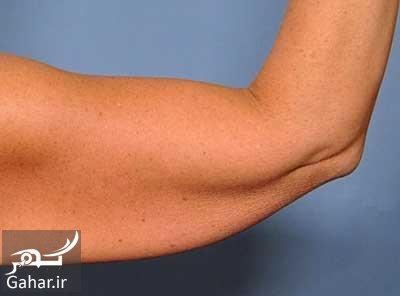 va4 823 افتادگی پوست بعد از کاهش وزن به چه دلیل است؟