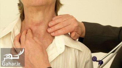Thyroid1 4 نشانه های کمبود ید در بدن کدامند؟
