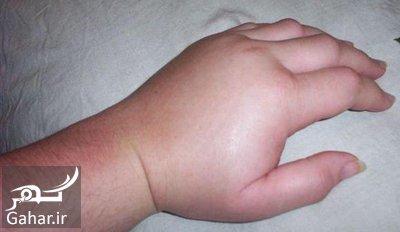 angioedema hands e10 بیماری آنژیوادم چیست؟ + علایم و درمان