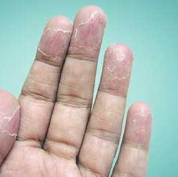علل و روش های درمان پوست پوست شدن بدن