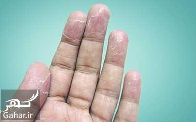 ar4 8250 علل و روش های درمان پوست پوست شدن بدن