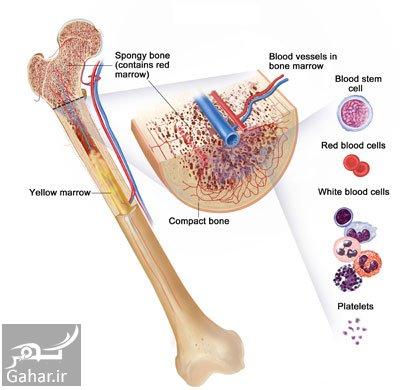bone cancer1 e9 علل و علایم و درمان سرطان استخوان