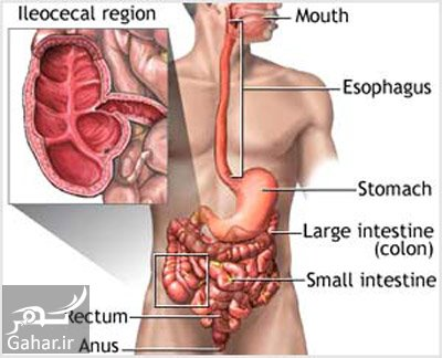 crohns disease e10 علل و علایم و درمان بیماری کرون چیست؟