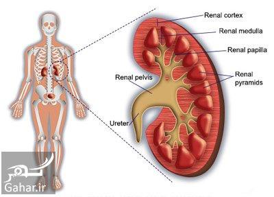 glomerulonephritis2 e9 علل و علایم و درمان بیماری گلومرولونفریت