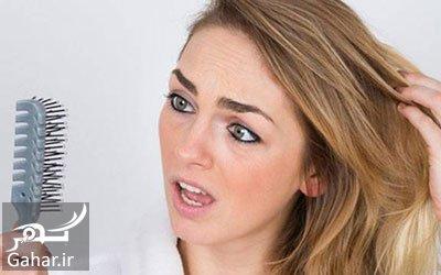 hee1080 درمان ریزش مو با طب سنتی چگونه است؟