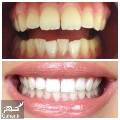 tooth2 whitening2 methods1 سفید کردن دندان با روش های اصولی و موثر