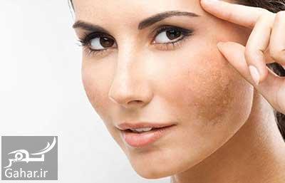 ar4 8337 روش های درمان لکه صورت یا ملاسما