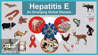 hepatitis e1 1 علل و روش های درمان هپاتیت E