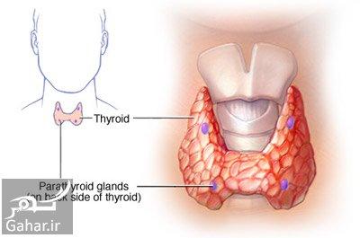 hyperparathyroidism4 e11 علل و علایم و روش های پیشگیری و درمان پرکاری پاراتیروئید