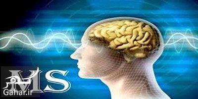 ms treatment روش درمان بیماری ام اس با گیاهان دارویی