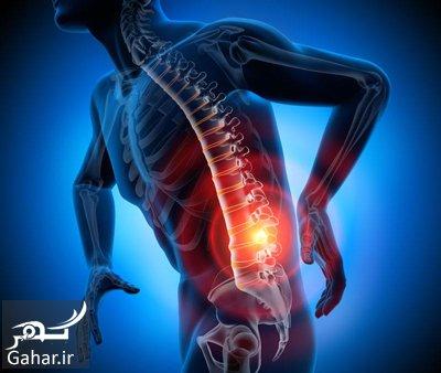 sciatic pain1 1 آموزش حرکت هایی برای کاهش درد سیاتیک