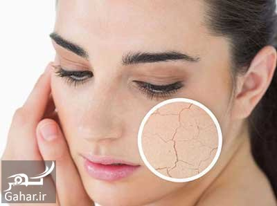 ar4 8473 یک روش موثر برای درمان خشکی پوست