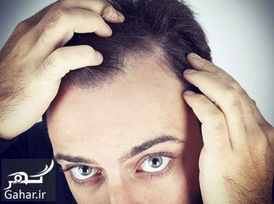 cause treatment hairloss22 ریزش مو در مردان چه عللی دارد؟ + روش درمان