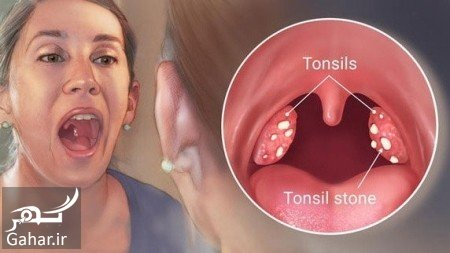 sange loze سنگ لوزه چیست + درمان