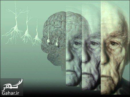 آلزایمر 1 راه های پیشگیری و درمان آلزایمر