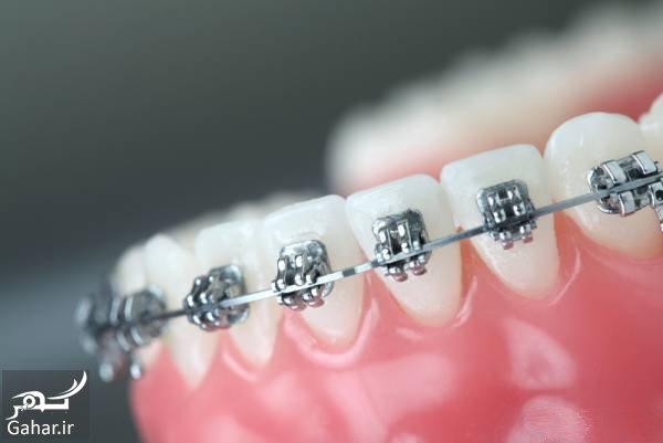 ارتودنسی دندان سوالات کلیدی در مورد ارتودنسیکردن