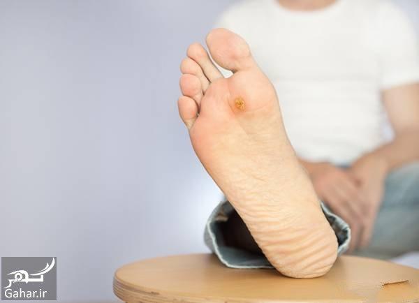 درمان خانگی زخم پای دیابتی روشهای خانگی درمان زخم پای دیابتی