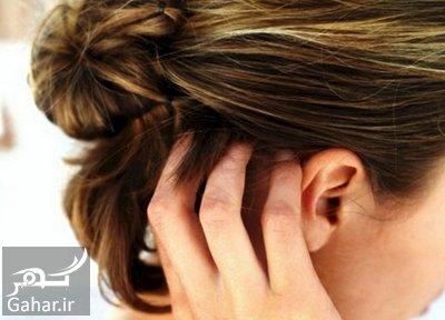 ar4 8867 خارش پوست سر + علل و راه درمان