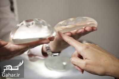 blog implants mammaires آیا می دانید پروتز سینه باعث ابتلا به سرطانی نادر می شود ؟