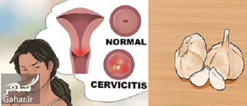 infection vagina garlic22 سیر بهترین راه درمان عفونت واژن