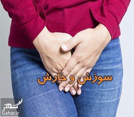 kharesh vajan درمان خارش و سوزش واژن در خانه