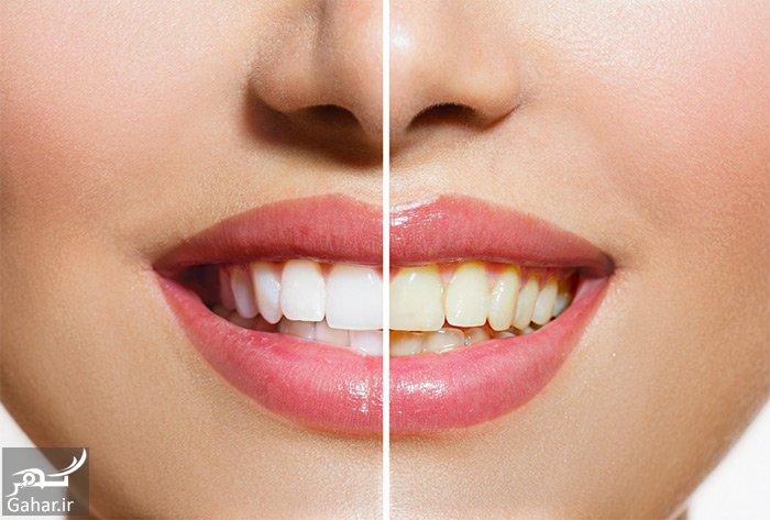 راهکار هایی برای از بین بردن جرم دندان, جدید 1400 -گهر