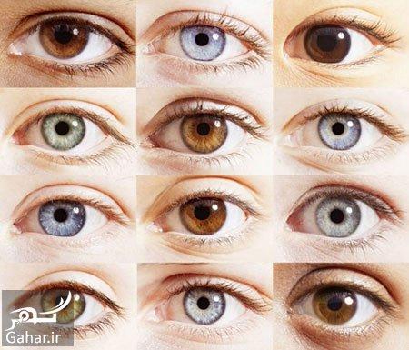 جراحی تغییر دائمی رنگ چشم در تهران ازدواج با چشم رنگی ها چه مشکلی دارد؟