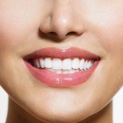 مهم ترین معیار ها برای داشتن یک لبخند زیبا چیست
