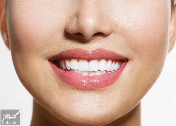 4 6 مهم ترین معیار ها برای داشتن یک لبخند زیبا چیست