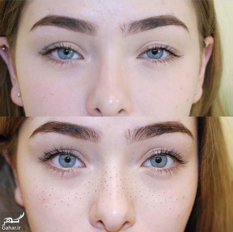 New fashion freckles tattoo 3 تاتوی کک و مک جدیدترین جراحی زیبایی در ایران