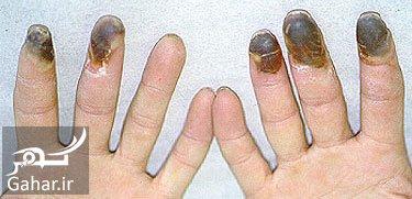 beurgr1 e9 علت، علائم، روش پیشگیری و درمان بیماری بورگر