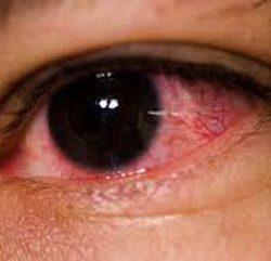 سرطان چشم چیست؟ + علل، علایم، پیشگیری و درمان