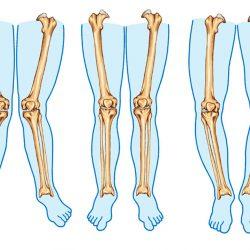 پای ضربدری چیست؟ + علل و روش پیشگیری و درمان